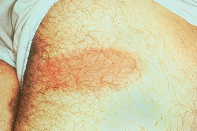 Non Bull's Eye Rash In Shown June 15 2001 On The Side Of A Torso Of A Patient Ticks C